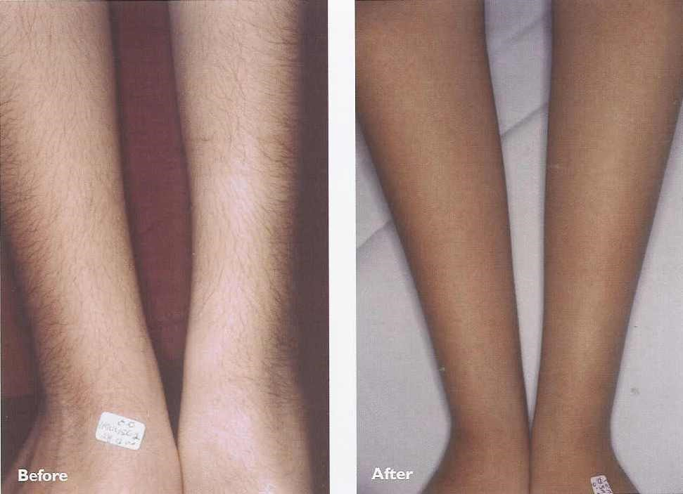laser hair removal 6